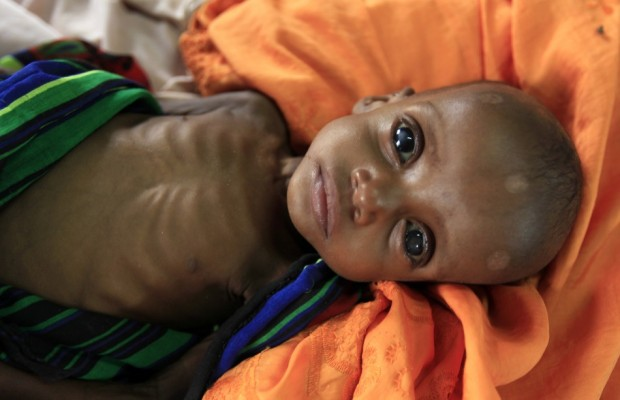 An unidentified severely malnourished Somali refugee child rests inside a ward at the Medecins Sans Frontieres (MSF) hospital at the Dagahale refugee camp in Dadaab, near the Kenya-Somalia border, July 28, 2011. Aid groups, which have been clamoring for money to help famine-stricken Somalia, are struggling to reach millions in the affected areas. Some 3.7 million Somalis risk starvation in two regions of south Somalia controlled by Islamist al Shabaab militants. Yet more than 2 million of them have not received any help.  Source: Reuters